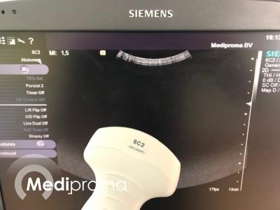 Siemens, 6C2, Transducer