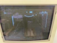 Hitachi EUB-5500 Echotoestel